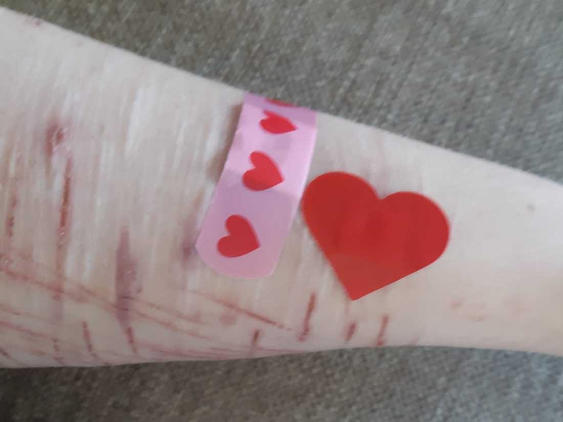 A scarred arm with two plasters on it, one normal shaped and one shaped like a heart